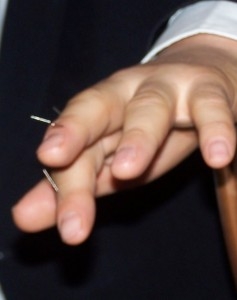 akupunktura-sujok-na-dloni1