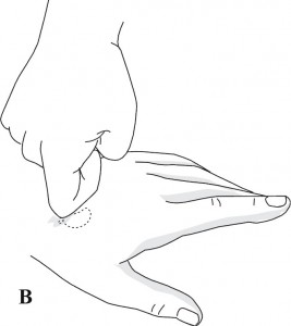 Masaż punktów odpowiadających nadnerczom przy prowadzeniu reanimacji w standardowym systemie odpowiadającym Su Jok na dłoni