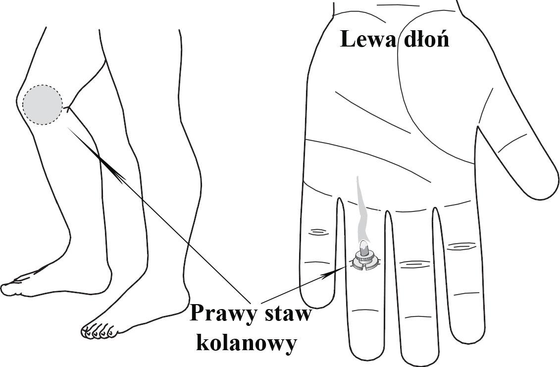 Ogrzewanie obszaru odpowiadającego prawemu stawowi kolanowemu minimoksą